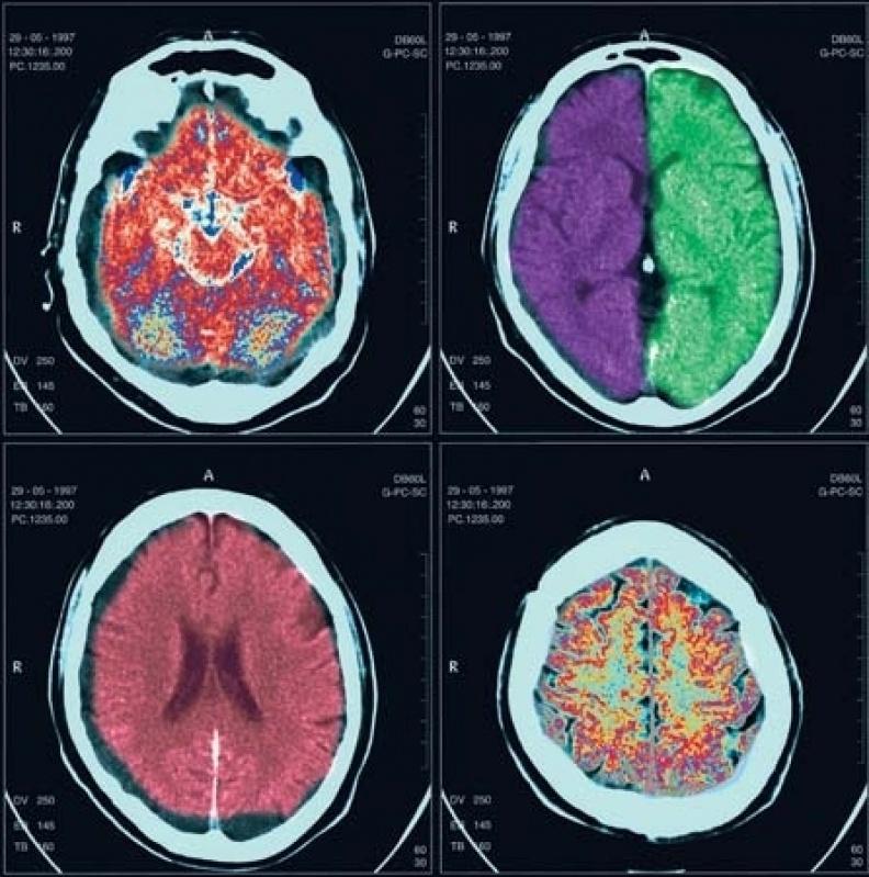 Clínica de Exames por Imagem em Sp Casa Verde - Clínica para Exames de Tomografia Abdominal