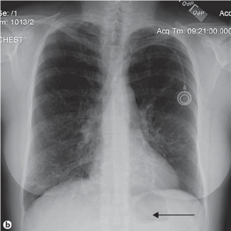Clínica para Exame de Tomografia do Tórax em Sp Brasilândia - Clínica para Exames de Tomografia Abdominal