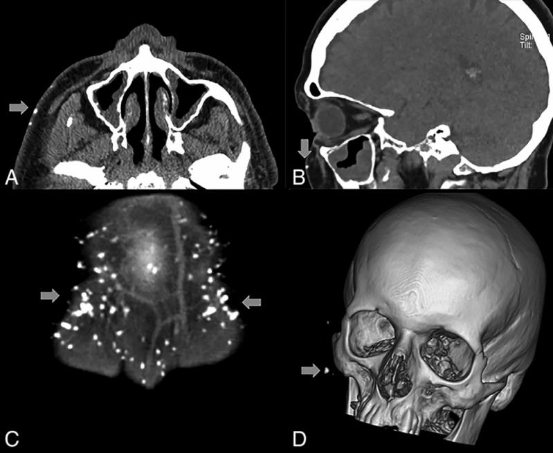 Clínica para Tomografia de Crânio Infantil Parque São Domingos - Tomografia dos Ossos Temporais