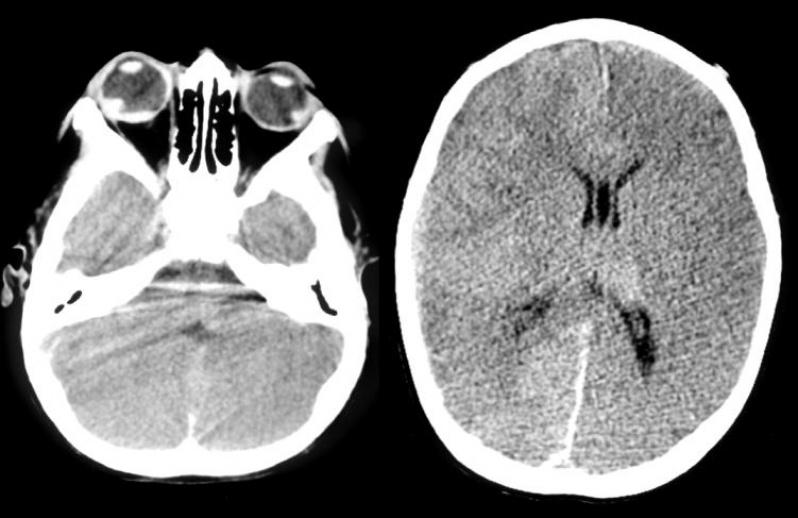 Clínica para Tomografia para Tumor Cerebral Parque São Jorge - Tomografia do Joelho