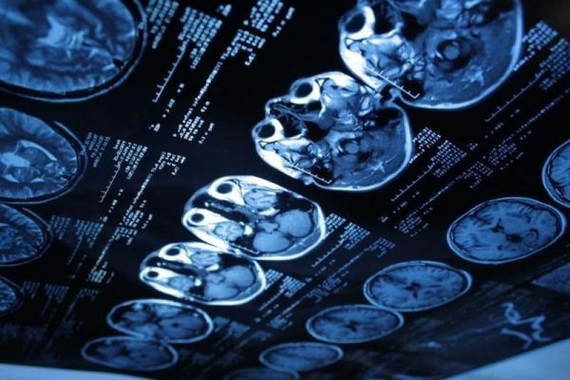 Clínicas de Ressonância Magnética óssea Parque das Américas - Clínica de Ressonância Magnética com Anestesia Geral
