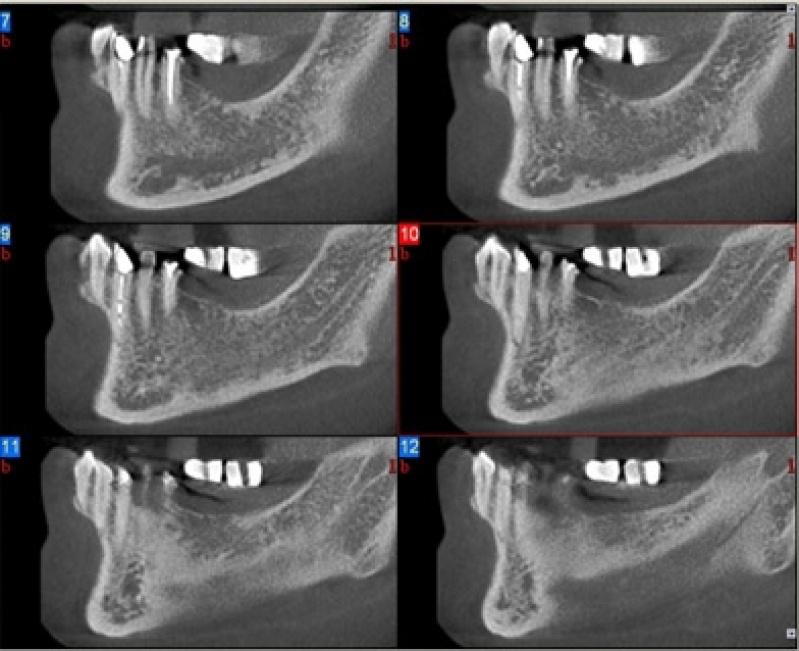 Clínicas para Exame de Tomografia Dental Preço Penha - Clínica para Exame de Tomografia do Tórax