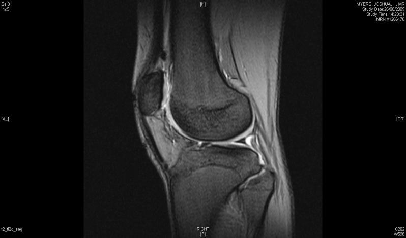 Exame de Imagem de Ressonância Magnética de Joelho em Sp Nossa Senhora do Ó - Exame de Imagem de Tomografia de Articulações