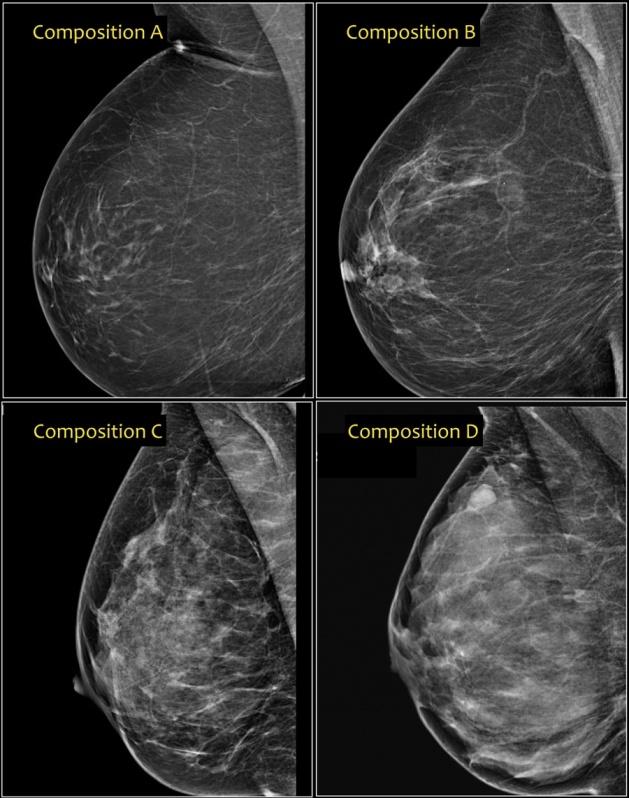 Exame de Imagem Ressonância Magnética de Mama Barato Vila Esperança - Exame de Imagem de Tomografia do Abdome Total