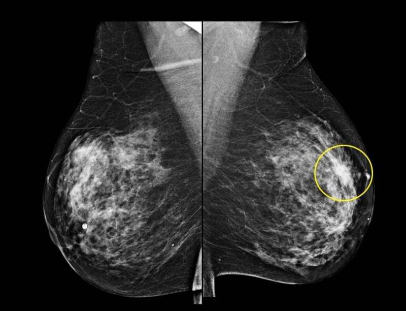 Exame de Imagem Ressonância Magnética de Mama em Sp Chácara Maria Aparecida - Exame de Imagem de Tomografia de Articulações