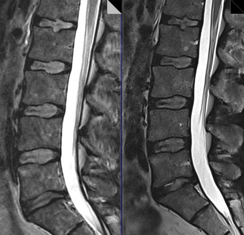 Exames de Imagem de Ressonância Magnética da Coluna Lombar Belenzinho - Exame de Imagem de Tomografia de Articulações