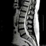 clínica de exame de imagem de ressonância magnética da coluna lombar Vila Mazzei