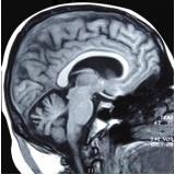 clínica de ressonância magnética da base do crânio