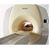 clínica de ressonância magnética torácica preço Engenheiro Goulart