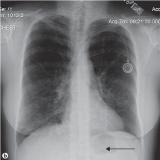 clínica para exame de tomografia do tórax em Sp Brasilândia