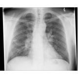 clínicas de raio x em são paulo Ponte Rasa