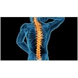 exame de imagem de ressonância magnética da coluna cervical Picanço