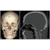 exame de imagem de ressonância magnética de crânio Cocaia