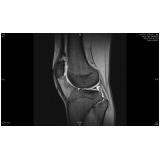 exame de imagem de ressonância magnética de joelho em sp Sadokim
