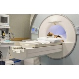 exame de imagem de ressonância magnética Brasilândia