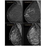 exame de imagem ressonância magnética de mama barato Itapeva