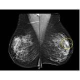 exame de imagem ressonância magnética de mama em sp Pimentas
