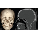 exame de imagem tomografia do crânio Macedo