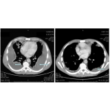 exame de imagem tomografia pélvica em sp Vila Galvão
