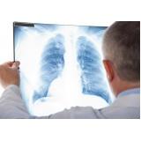 exame de radiografia a preço popular Vila Gustavo