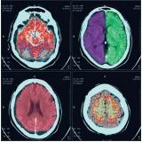 exame de tomografia computadorizada Parque das Américas