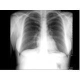 exame de radiografia a preço popular
