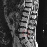 exame de imagem de ressonância magnética da coluna lombar
