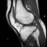 exame de imagem de ressonância magnética de joelho
