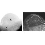 exame de imagem ressonância magnética de mama