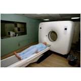 exames de tomografia computadorizada Vila Mazzei