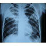 onde encontrar exame de radiografia a preço popular Paraventi
