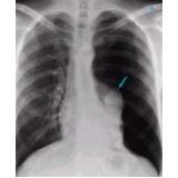 onde encontrar radiologia a preço popular Vila Dalila