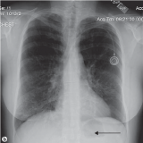 tomografia do tórax em sp Tanque Grande