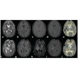 tomografia para tumor cerebral Água Chata