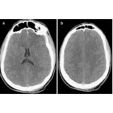 tomografias para tumor cerebral Gopoúva