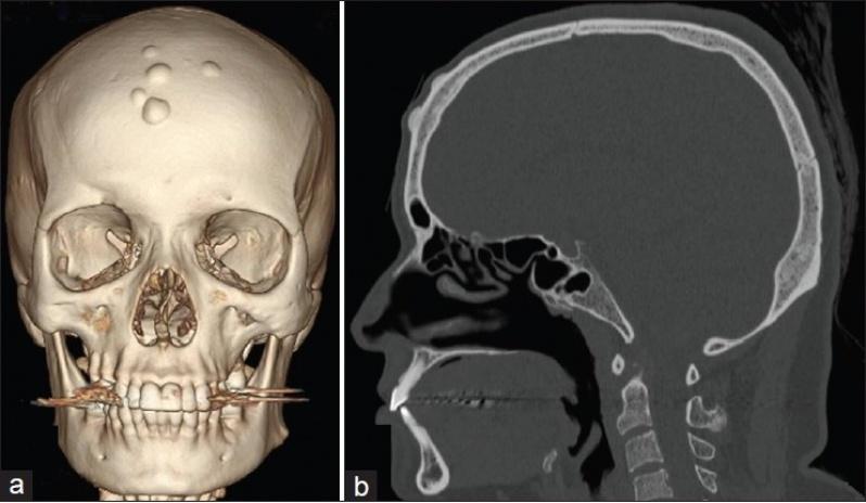 Tomografia do Crânio com Contraste CECAP - Tomografia de Fígado