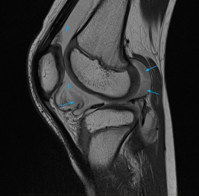 Tomografia do Joelho Centro - Tomografia do Tórax