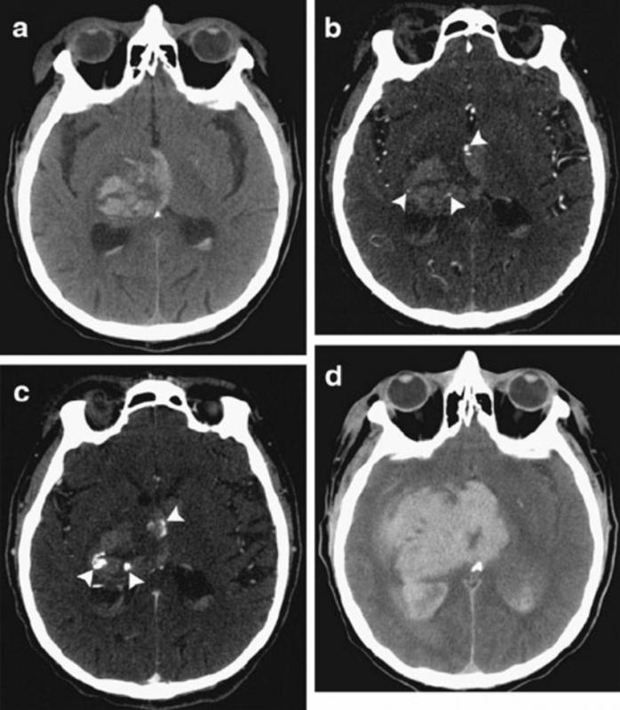 Tomografia em Sp Preço Chora Menino - Especialistas em Tomografia