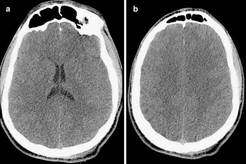 Tomografias para Tumor Cerebral Várzea do Palácio - Tomografia do Tórax